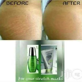 Oriflame Stretch Mark Cream