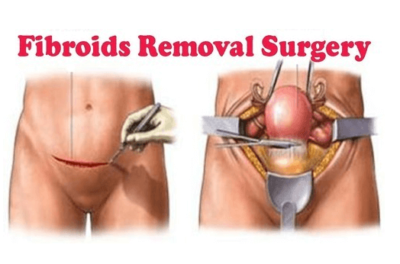 cost of fibroid surgery in nigeria